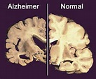 Alzheimer's Effect on the brain